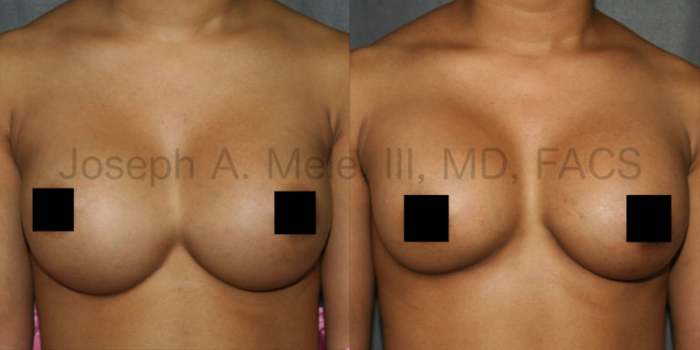 Breast Implant Revision Surgery for Symmastia - Before and After Pictures