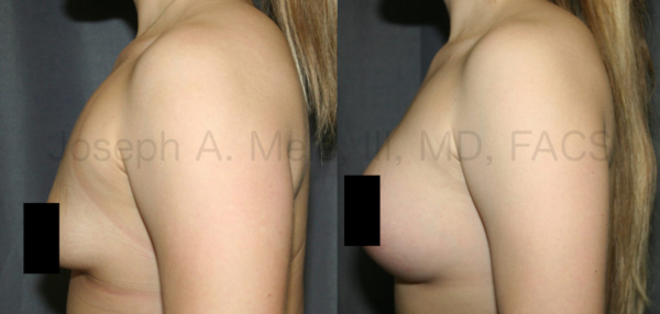 Tubular Breast Augmention Before and After Pictures