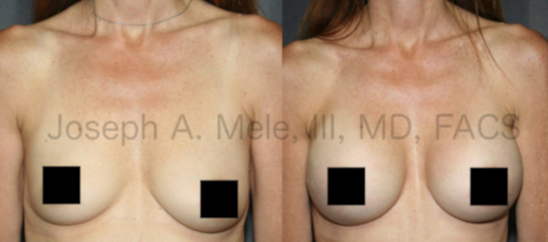 Breast Augmentation before and after pictures for Breast Asymmetry