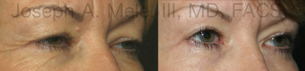 Blepharoptosis (saggy upper eyelids) is corrected with levator advancement in these eyelid surgery before and after photos.
