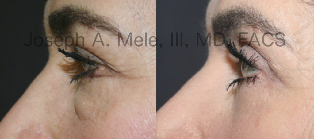 Lower Eyelid Surgery (Blepharoplasty) for Eyelid Bags - before and after pictures