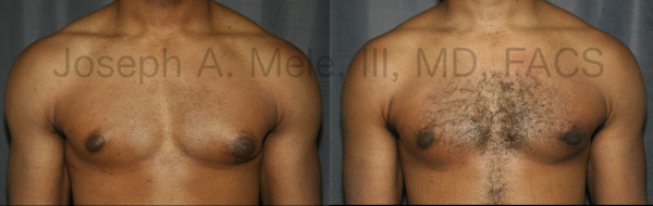 Before and after pictures of Gynecomastia Reduction for male breast enlargement.
