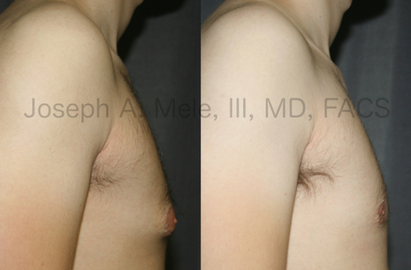 Gynecomastia Reduction for Tubular Breasts before and after photos.