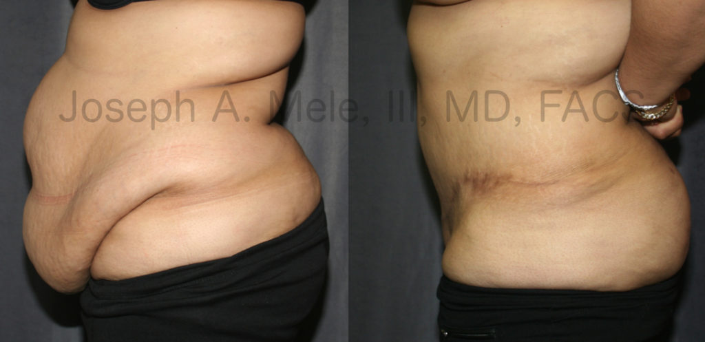 Post Bariatric Plastic Surgery - Tummy Tuck Before and After Pictures