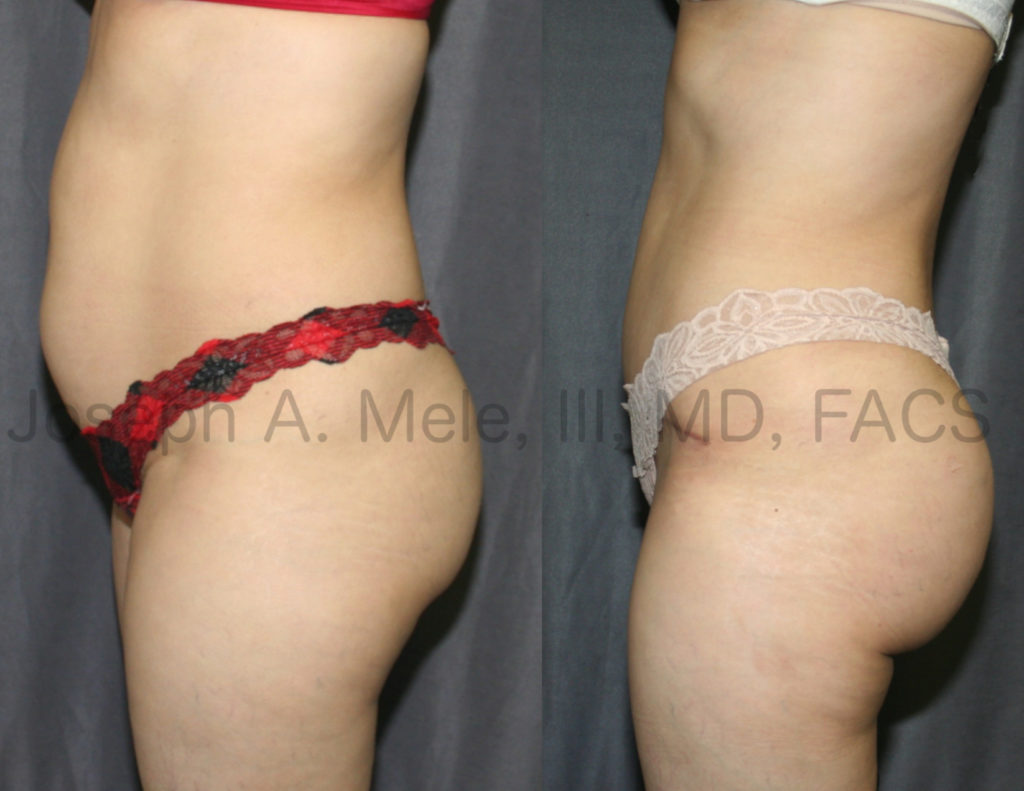Tummy Tuck with Brazilian Butt Lift Before and After pictures
