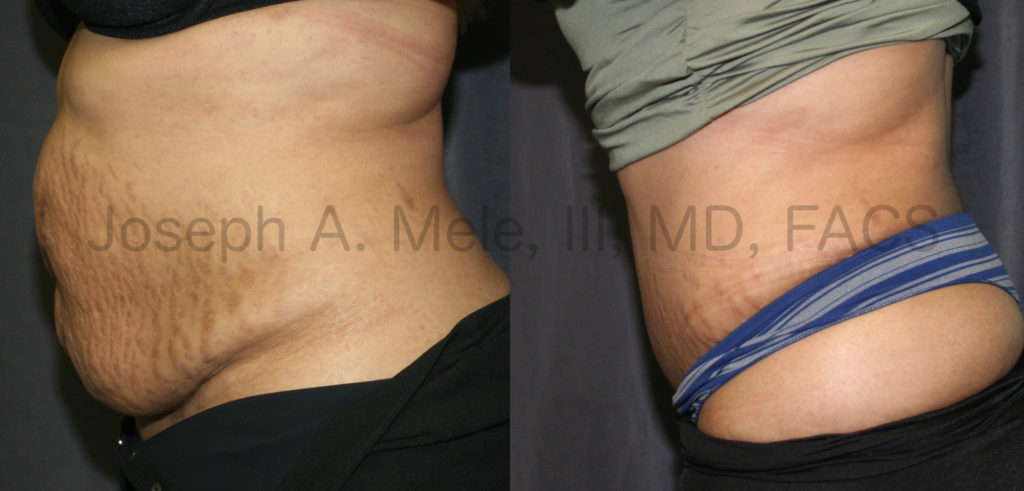 Tummy Tuck Before and After (Abdominoplasty)