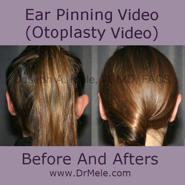 Otoplasty before and after photos for prominent ear pinning